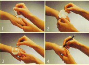 Как выбрать крем и мазь от псориаза виды мази при псориазе